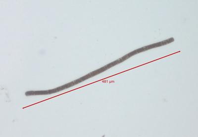 Trichodesmium filament
